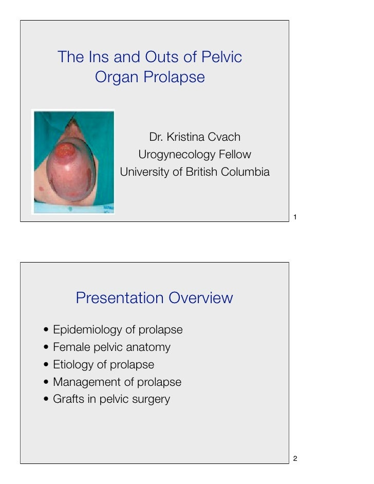 The Ins and Outs of Pelvic         Organ Prolapse                     Dr. Kristina Cvach                   Urogynecology F...