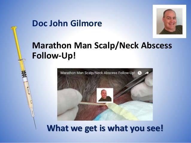 Marathon Man Scalp/Neck Abscess Follow-Up!