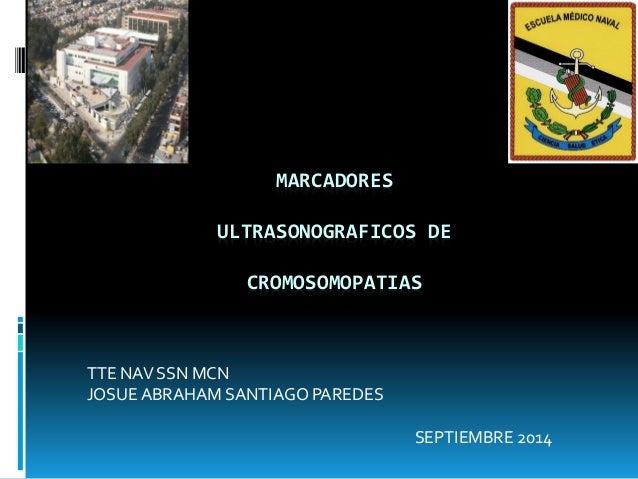 MARCADORES ULTRASONOGRAFICOS DE CROMOSOMOPATIAS TTE NAV SSN MCN JOSUE ABRAHAM SANTIAGO PAREDES SEPTIEMBRE 2014
