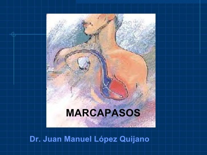 MARCAPASOS Dr. Juan Manuel López Quijano