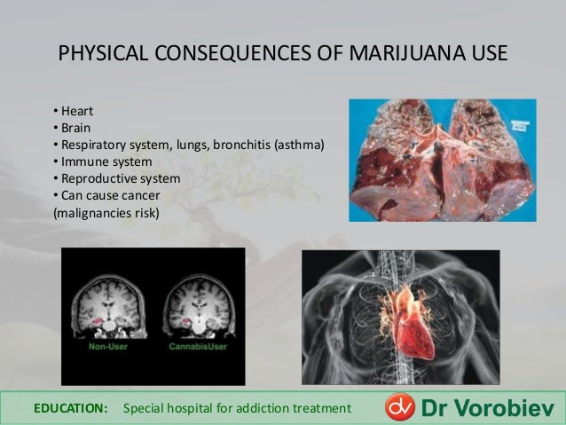 "side effects of marijuana use essay Marijuana vs prescription drugs: what you need to know  ""common side effects of opioid  but the long-term effects of marijuana use appear to be far safer."