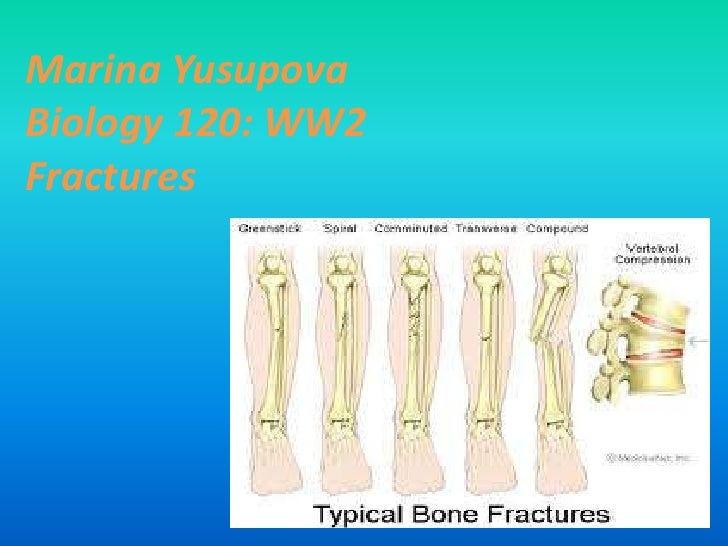 Marina YusupovaBiology 120: WW2Fractures <br />