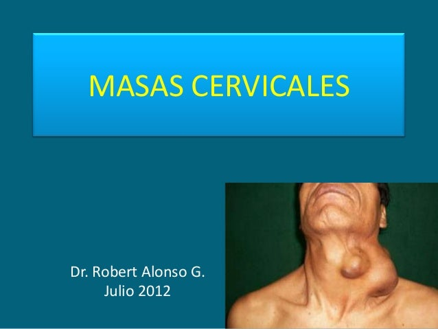 MASAS CERVICALESDr. Robert Alonso G.     Julio 2012