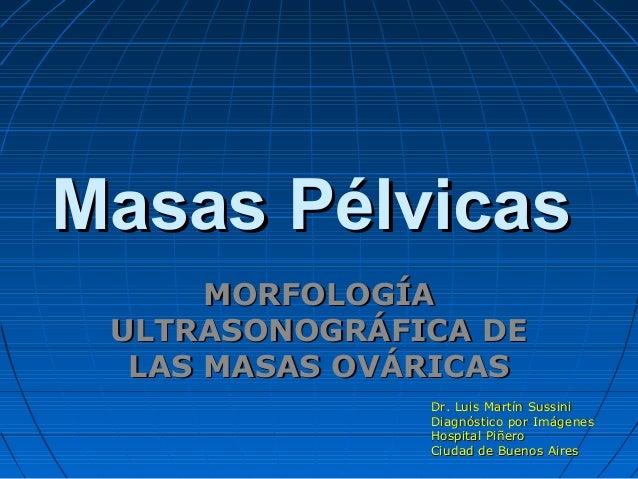Masas PélvicasMasas Pélvicas MORFOLOGÍAMORFOLOGÍA ULTRASONOGRÁFICA DEULTRASONOGRÁFICA DE LASLAS MASAS OVÁRICASMASAS OVÁRIC...