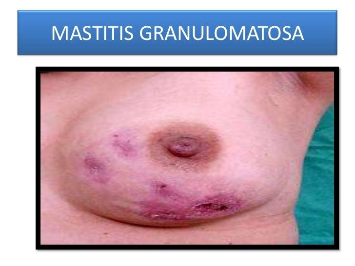 MASTITIS GRANULOMATOSA<br />