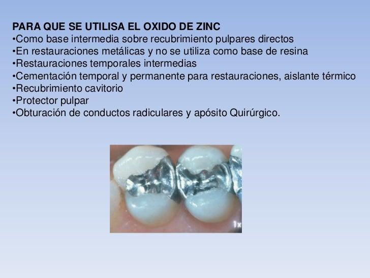 Materiales de obturacion for Para que se utiliza el marmol