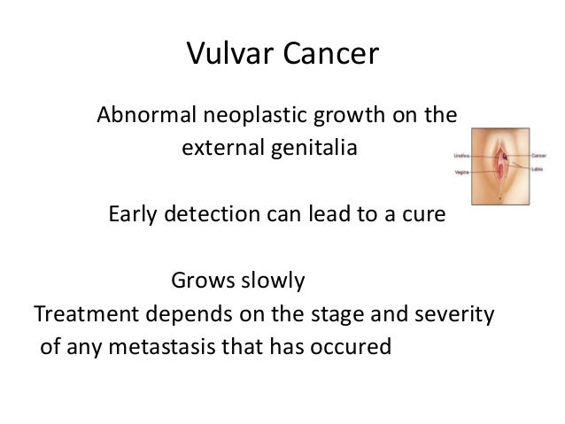The gallery for --> Vulvar Cancer Melanoma  Vulvar Cancer