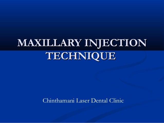 Maxillary Injection Technique