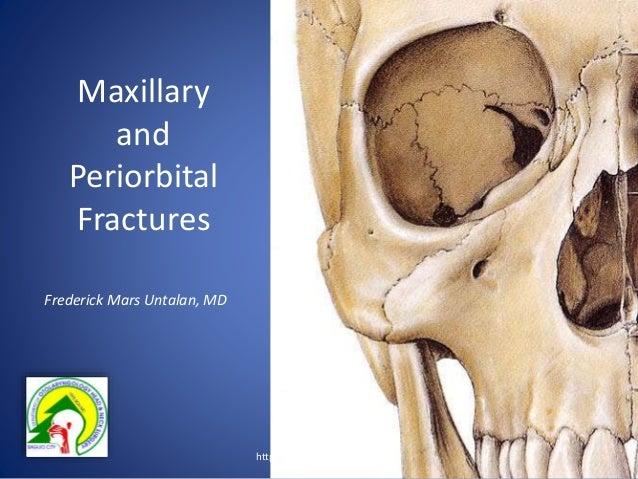 Maxillary and periorbital fractures