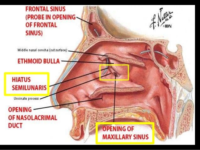sinus infection oral steroids