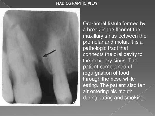 Maxillary sinus new for Floor of the maxillary sinus