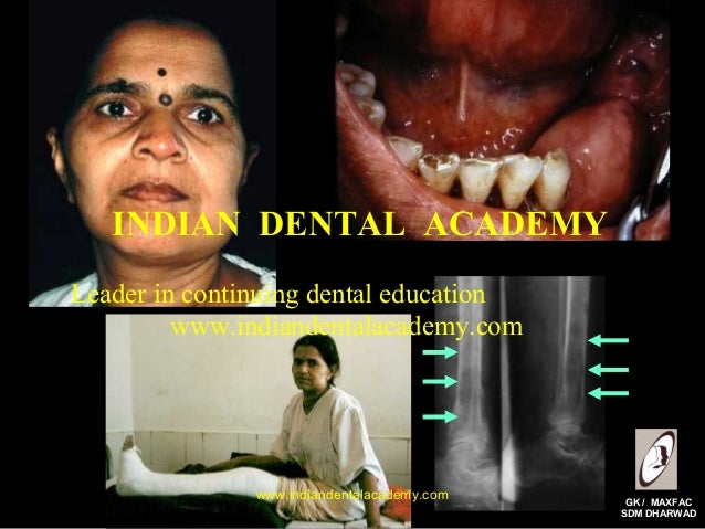 INDIAN DENTAL ACADEMY Leader in continuing dental education www.indiandentalacademy.com  www.indiandentalacademy.com  GK /...