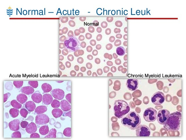 a comparison of chronic lymphocytic leukemia and lymphoma Chronic lymphocytic leukemia (cll) and small lymphocytic lymphoma the nci dictionary of cancer terms features 8,241 terms related to cancer and medicine.