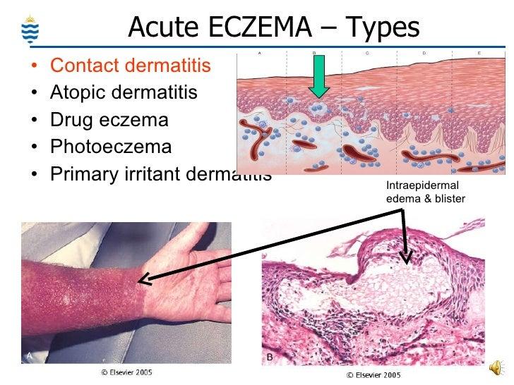 Pathology of Skin - Common Disorders