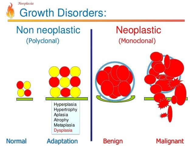 What Is a Malignant Neoplasm advise