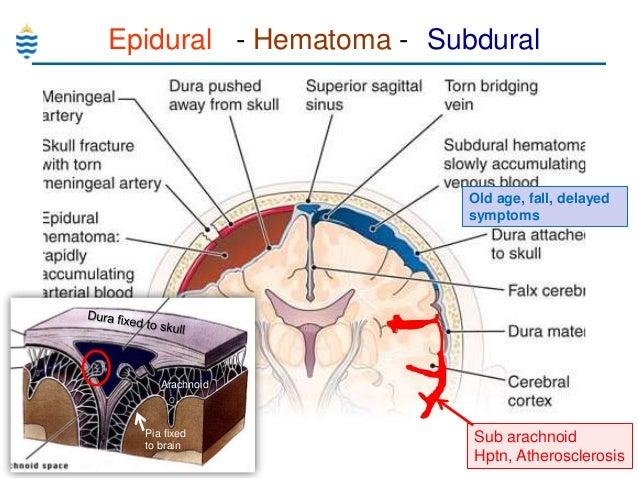 Damage to the thalamus