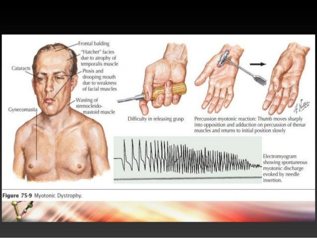 myotonic muscular dystrophy Myotonic muscular dystrophy (mmd) is a form of muscular dystrophy that affects myotonic muscular dystrophy is often known simply as myotonic dystrophy and is.