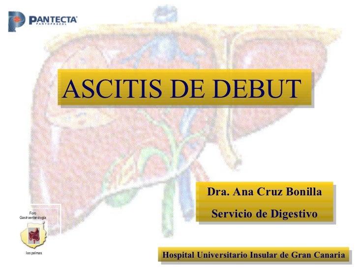 Dra. Ana Cruz Bonilla Servicio de Digestivo Hospital Universitario Insular de Gran Canaria ASCITIS DE DEBUT Foro Gastroent...
