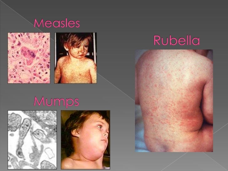 Measles, mumps and rub...