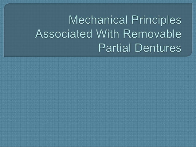 Mechanical principles associated with removable partial dentures