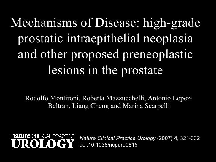 Mechanisms of Disease: high-grade prostatic intraepithelial neoplasia and other proposed preneoplastic lesions in the pros...