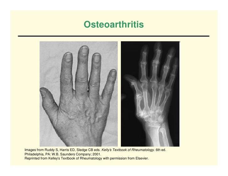 Osteoarthritis     Images from Ruddy S, Harris ED, Sledge CB eds. Kelly's Textbook of Rheumatology. 6th ed. Philadelphia, ...