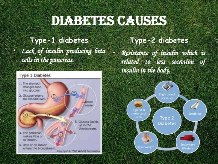 type 2 diabetes outline