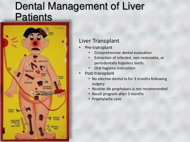 Cialis liver disease