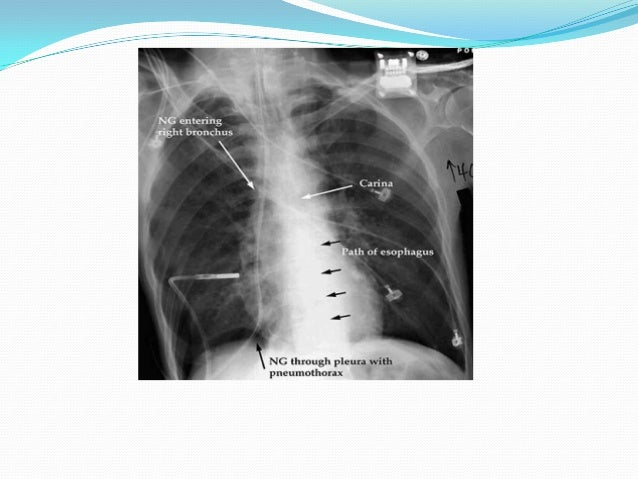 complications of epidural steroid injection