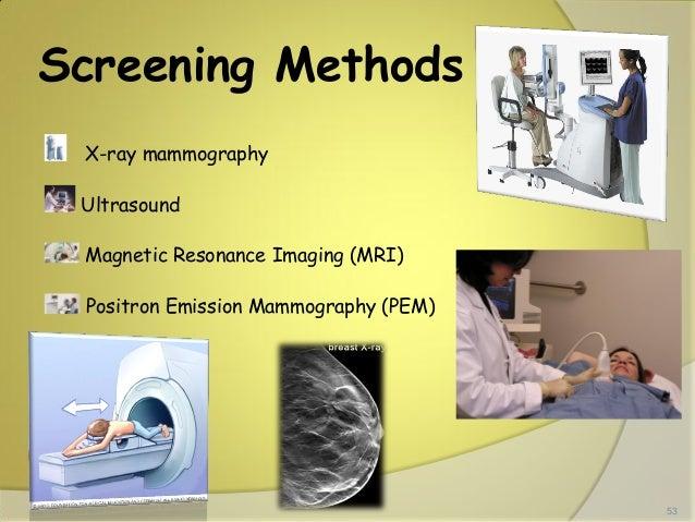 Emission Mammography Emission Mammography Pem