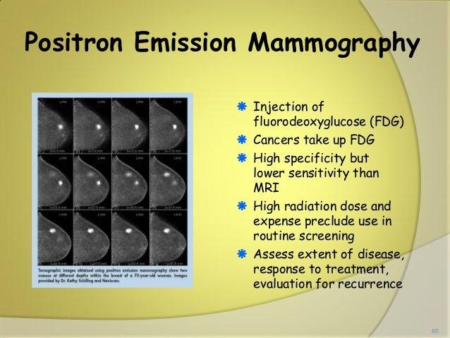 Emission Mammography Positron Emission Mammography