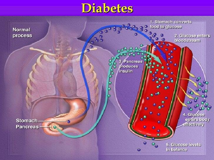 Новый год для диабетиков 1 типа