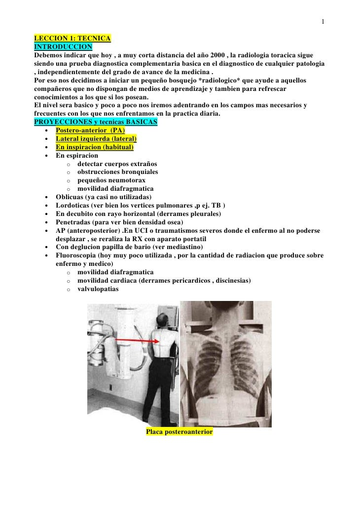1LECCION 1: TECNICAINTRODUCCIONDebemos indicar que hoy , a muy corta distancia del año 2000 , la radiologia toracica sigue...