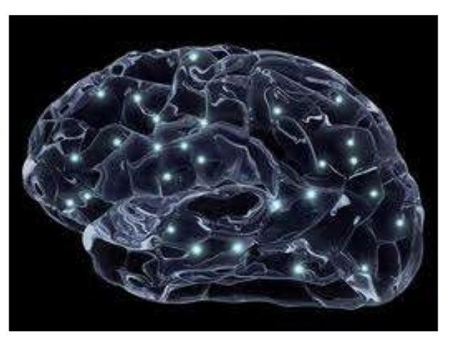 Alzheimer's disease Eman youssif