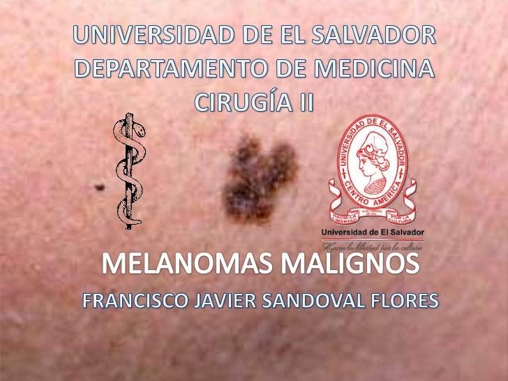 OBJETIVOS• DEFINIR MELANOMA• CLASIFICAR LOS MELANOMAS• DESCRIBIR LAS PRESENTACIONES CLÍNICAS DE  MELANOMA• DETERMINAR LOS ...