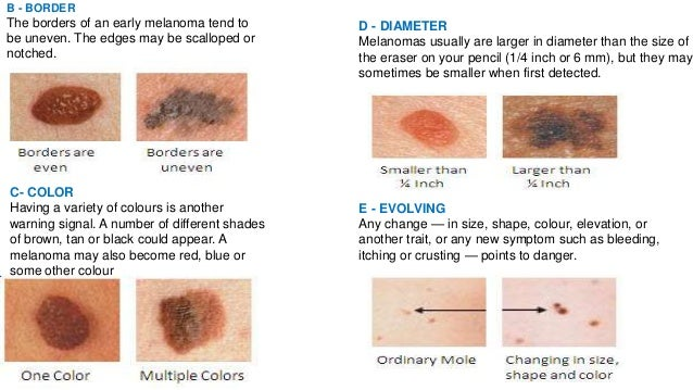 melanoma on scalp pictures #10