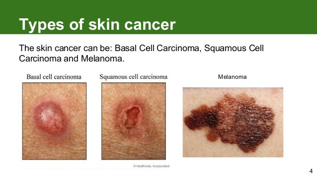 Types of skin cancer 4 the skin cancer can be