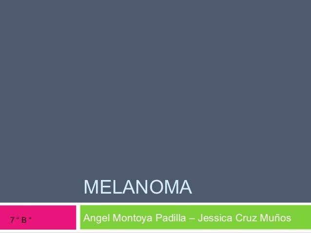 "MELANOMA Angel Montoya Padilla – Jessica Cruz Muños7 "" B """