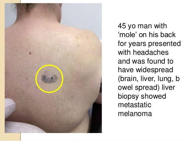 nodular melanoma pictures early #11