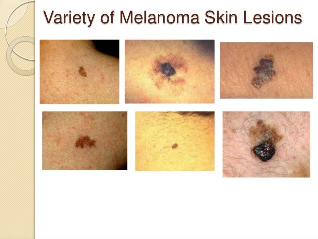 Early melanoma pictures | SkinVision