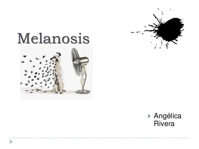 Melanosis