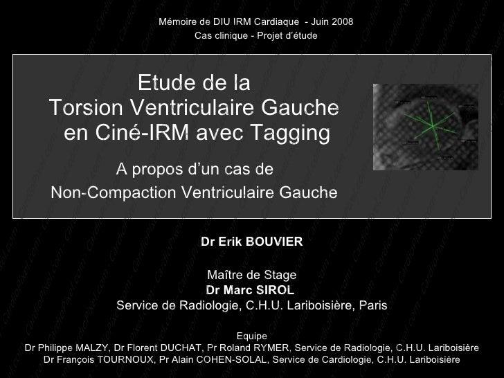 Mémoire de DIU IRM Cardiaque - Juin 2008                                    Cas clinique - Projet d'étude                 ...
