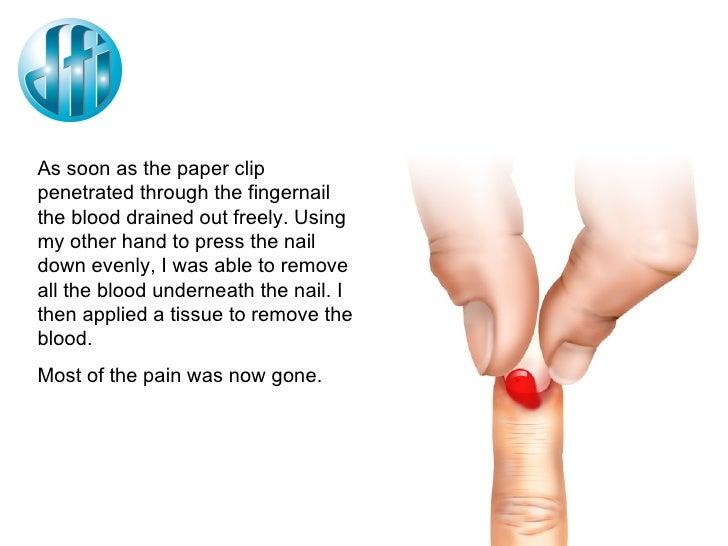 Smashed fingernail