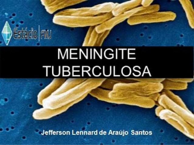 Meningite Tuberculosa  Jefferson Lennard de Araújo Santos