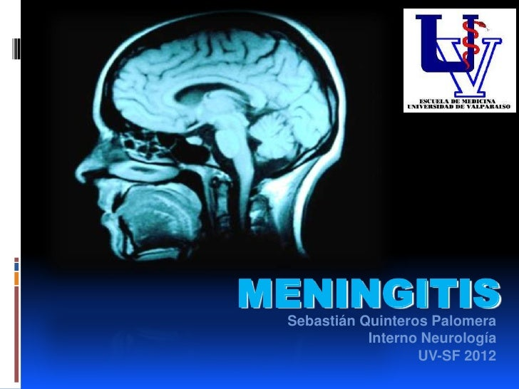 MENINGITIS Sebastián Quinteros Palomera            Interno Neurología                   UV-SF 2012