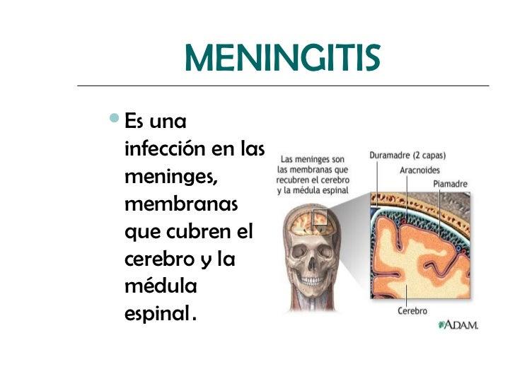 MENINGITISEs una infección en las meninges, membranas que cubren el cerebro y la médula espinal.