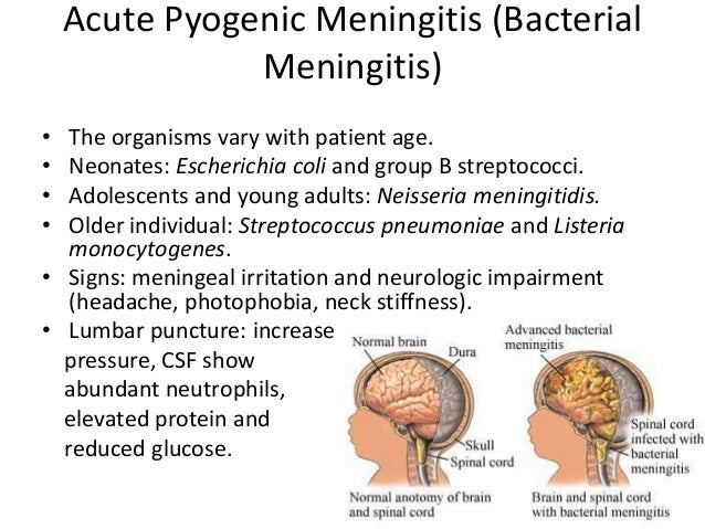 meningitis notes Meningitis, pneumococcal: notes about the disease  although it has, fortunately, not replaced acute otitis media as the most common manifestation of pneumococcal disease in infants and.