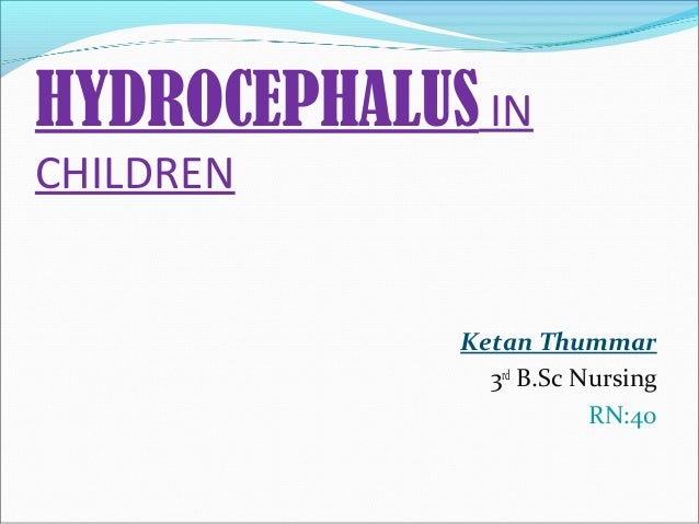 HYDROCEPHALUS IN CHILDREN  Ketan Thummar 3rd B.Sc Nursing RN:40