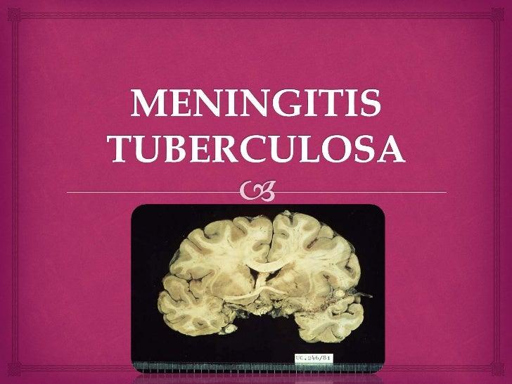 meningitis tuberculosa esteroides
