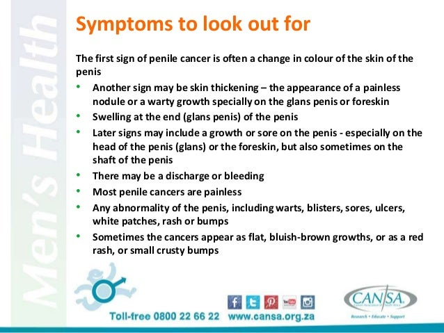 Symptoms of penis cancer